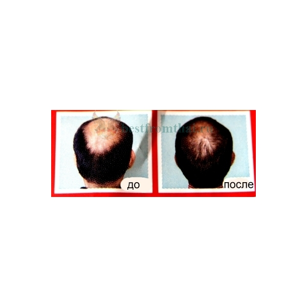 шампунь от выпадения волос отзывы