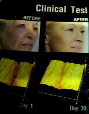 IMG 2864 4.Кремы: антивозрастные, омолаживающие, подтягивающие кожу