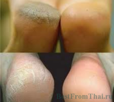 images 24 2C Уход за ногами(лечение трещин на пятках, устранение запаха и потливости ног плюс ортопедические стельки!)