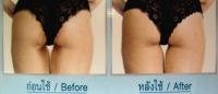 IMG 4532 Как отбелить кожу в интимных местах?