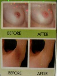 Отбеливание интимной кожи в домашних условиях