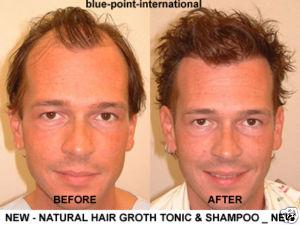 Hair TONIC Extra Loss 1.А. Средства для лечения выпадения волос