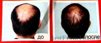 IMG 8395 1.А. Средства для лечения выпадения волос