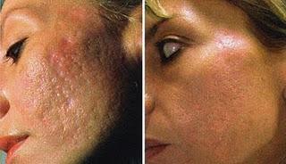 acne scarring 2.Уход за кожей