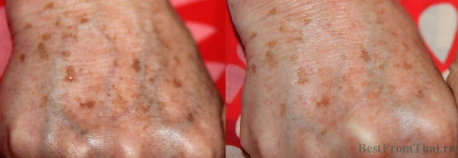 testirovanie Finale Whitening Cream1  Отбеливающие кремы и средства для интимной зоны