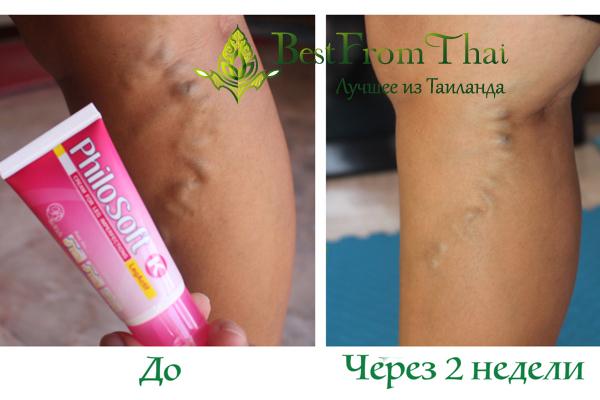 krem varikozm2 Лечение варикоза ног: личный опыт.