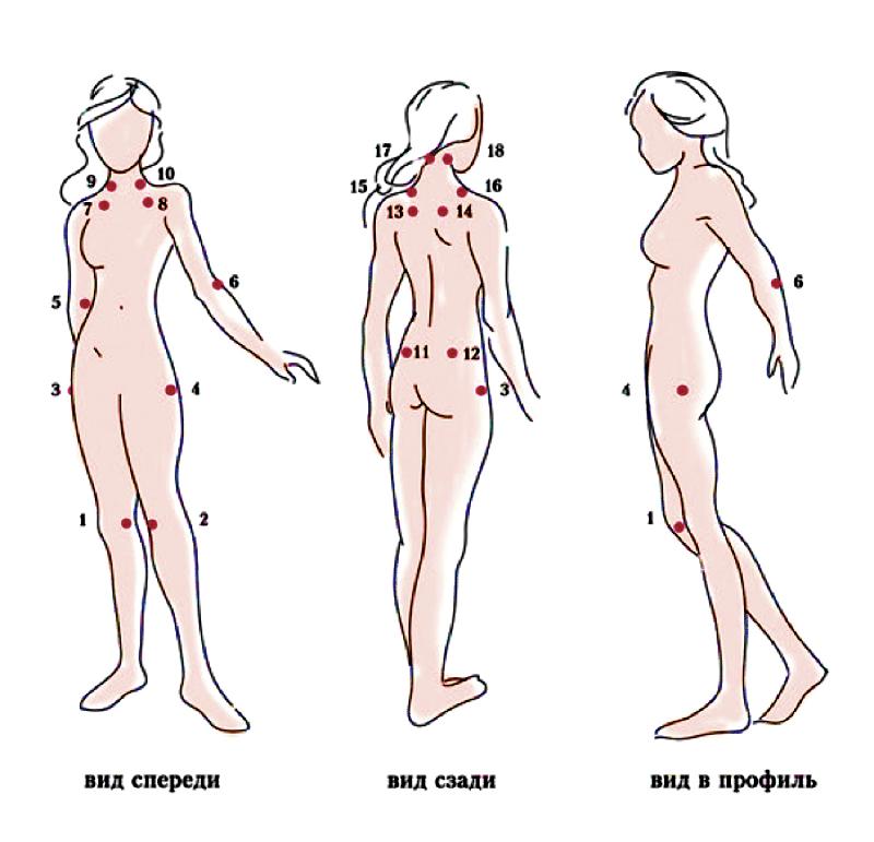 Почему болит верхняя часть спины и что делать