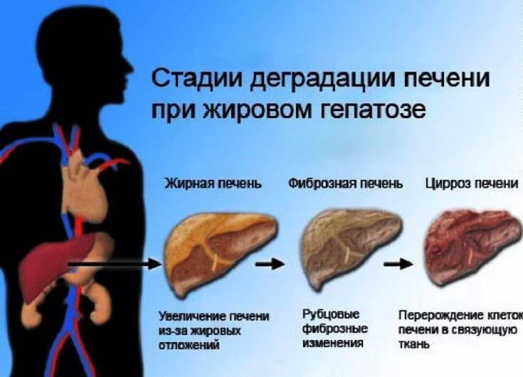 чем лечить больную печень
