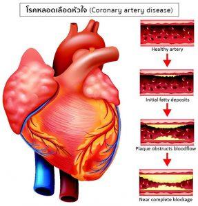 инфаркт миокарда почему