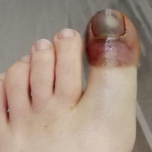 перелом большого пальца на ноге