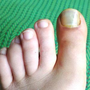 ушиб или перелом пальца на ноге