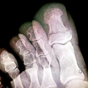 рентген большого пальца ноги