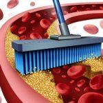Очистка сосудов от холестерина и кальция