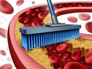 очистить сосуды от холестерина народными средствами