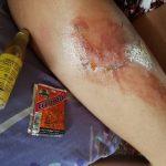 Лечение ожогов средствами тайской медицины: чем лечить ожог кожи?