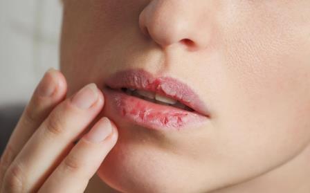 сохнут губы у женщины причина