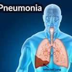 Как восстановить легкие после пневмонии