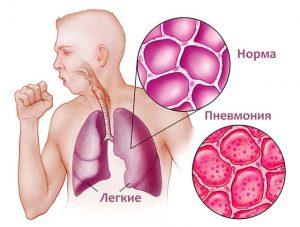 пневмония причины последствия