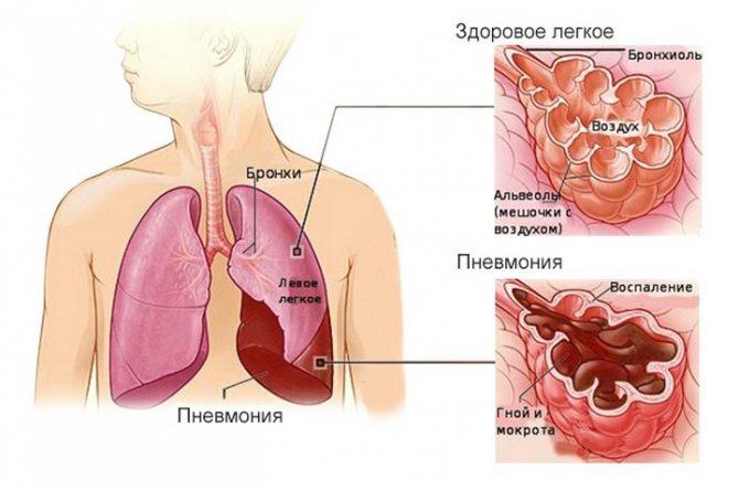 пневмония симптомы у взрослых без кашля